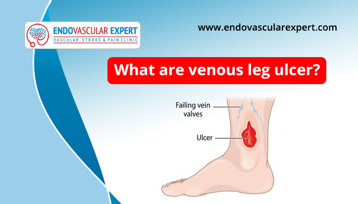 What is venous leg ulcer?