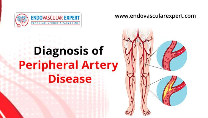 Diagnosis Of Peripheral Artery Disease