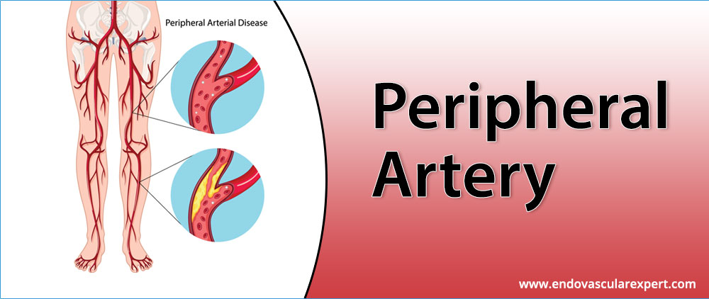 Get the Peripheral Artery Disease Treatment in Jaipur
