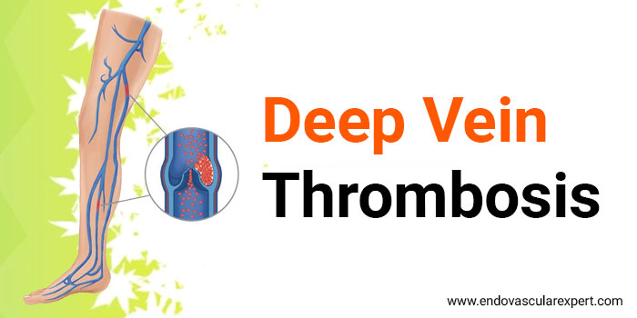 DVT Treatment in Jaipur