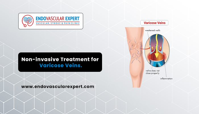 Non-invasive Treatment for Varicose Veins