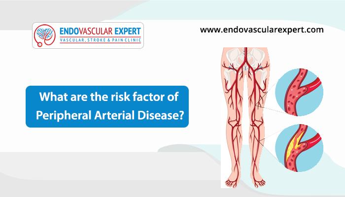 risk factors of peripheral arterial disease